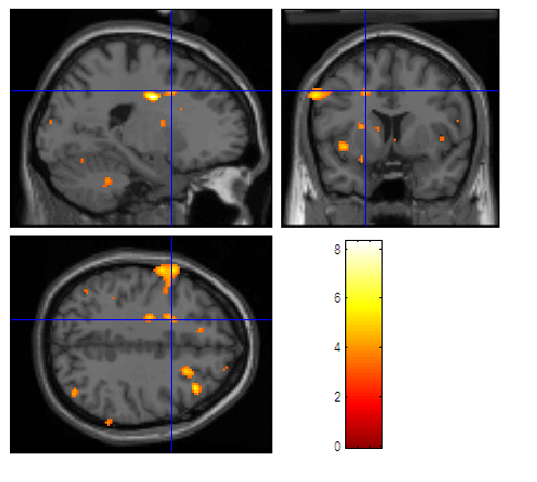 fMRI-nedir